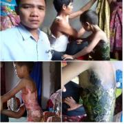Butuh Bantuan Segera!! Bocah Berumur 6Thn Asal Pancor Dao-Lombok Tengah Terluka Parah Terkena Air Mendidih